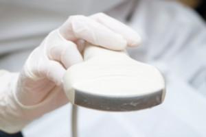 Nőgyógyászati ultrahang készülék megvásárlása